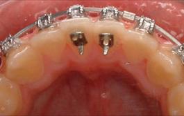 Types Of Appliances Carcara Orthodontics
